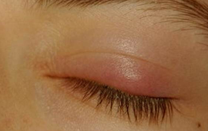 Home Remedies For Eyelid Bump