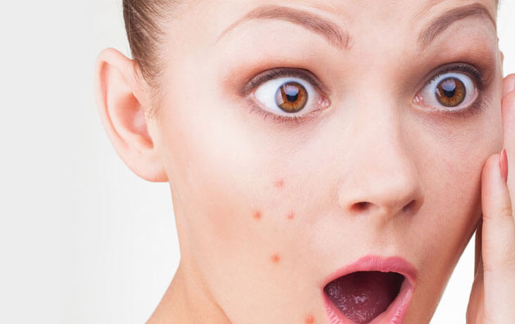 Face Acne: Causes, Rem...